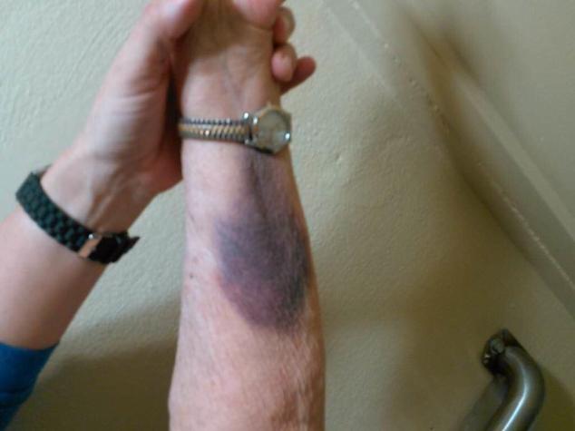 inside left arm