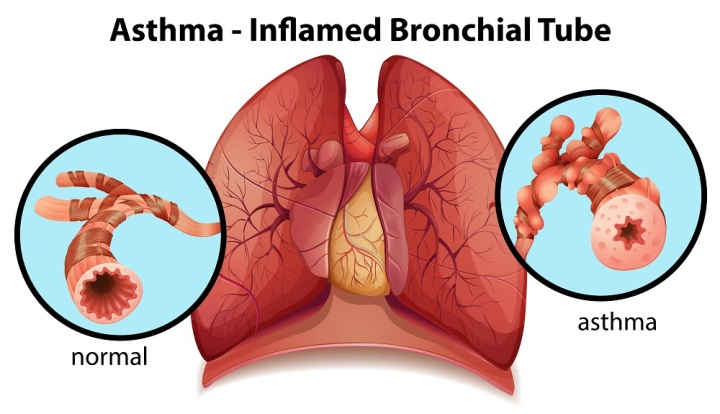An image of an asthma-inflamed bronchial tube on a white background